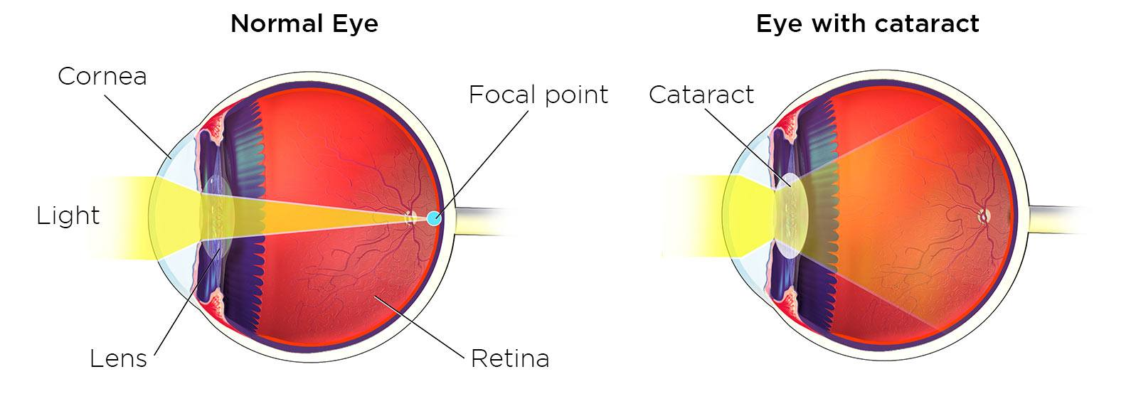 Eyes with cataract
